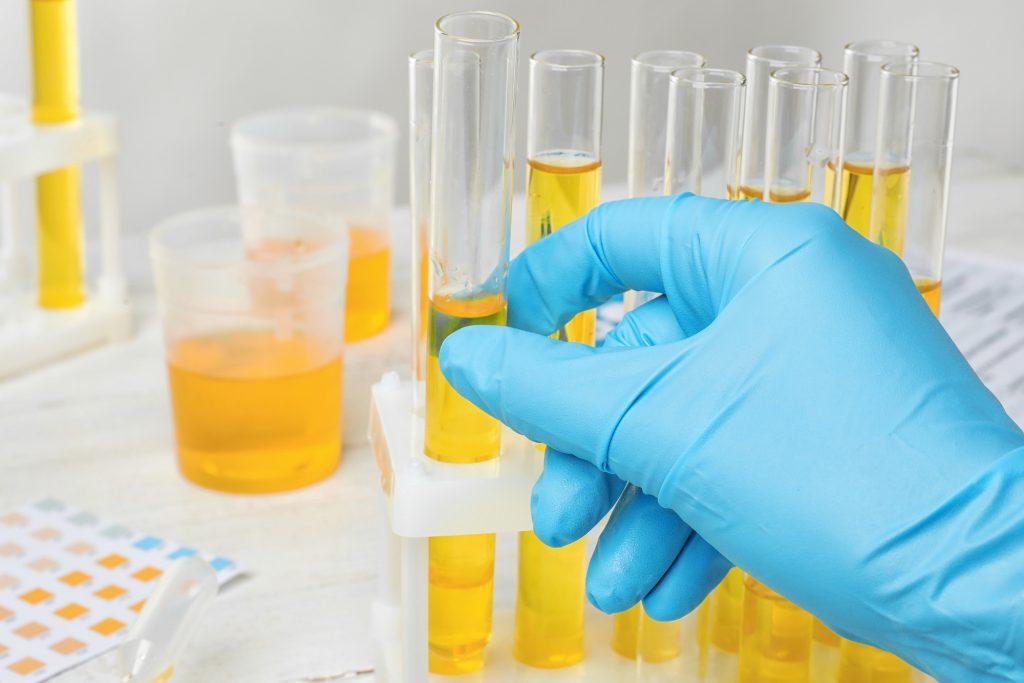 Powdered Urine Kit By Testclear